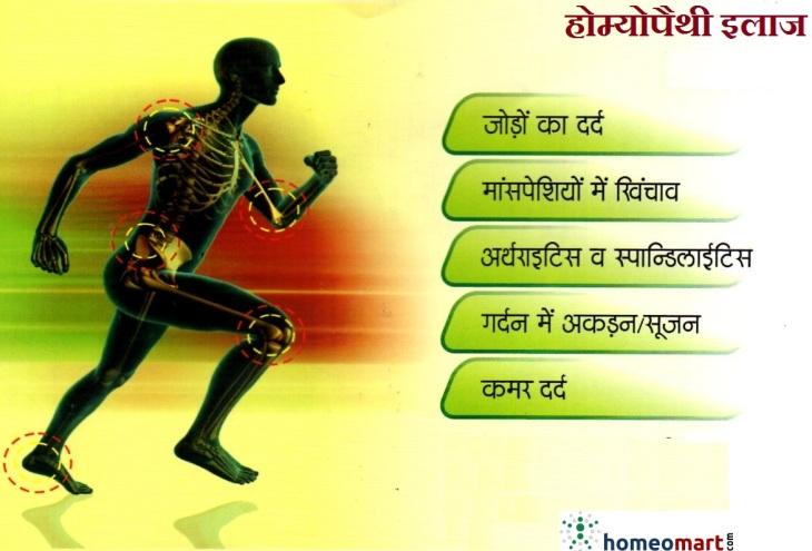 Arthritis Medicine Hindi List, Buy Online