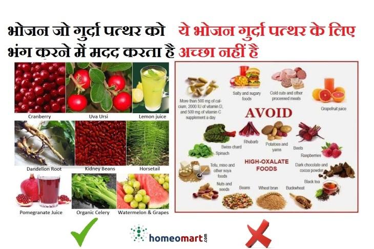 kidney stone diet chart in hindi