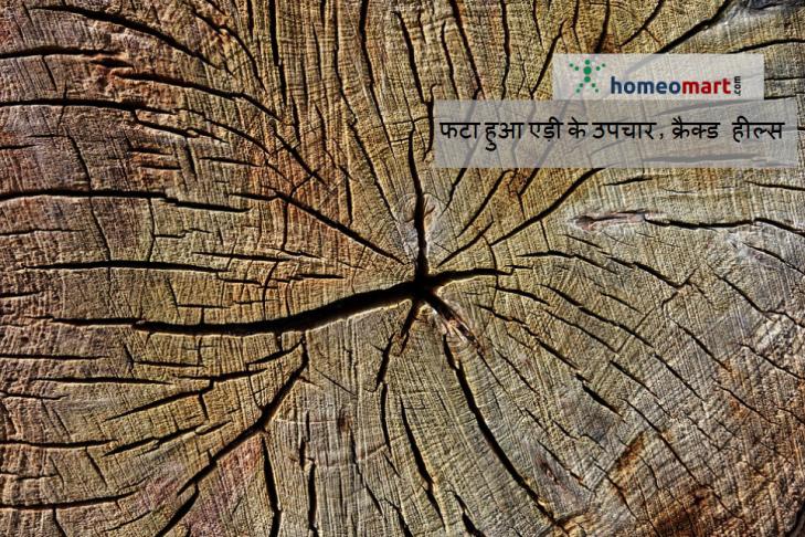 cracked heels medicine hindi