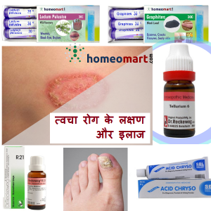 tvacha rog ka ilaj skin disease medicine hindi