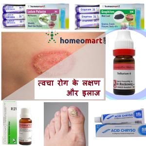tvacha rog ka ilaj skin disease medicine hindi