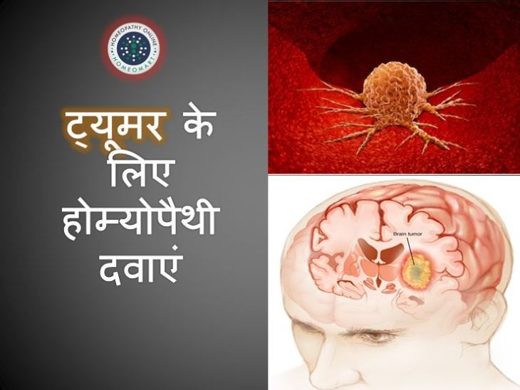 Brain Tumor homeopathic medicines in Hindi