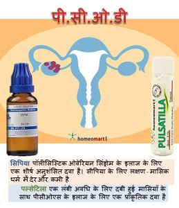 Image of a uterus with polycystic ovaries and homeopathic medicines in hindi, pcod ka ilaj upachar