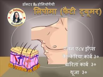 lipoma me kya khaye, lipoma in hindi wikipedia, ganth me dard hona