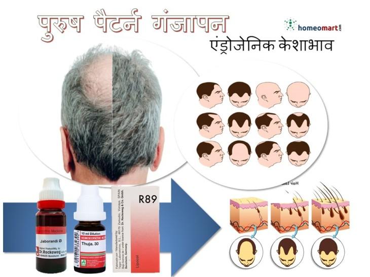 पुरुषों में बाल झड़ने के कारण गंजापन का होमियोपैथी इलाज इन हिंदी