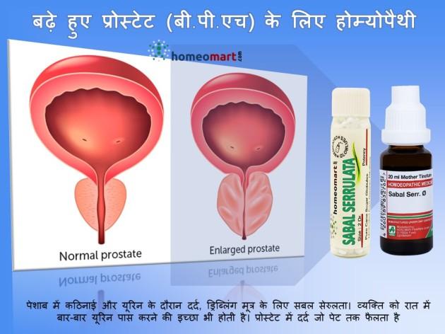 prostatitis medicines in hindi प्रोस्टेट की रामबाण दवा in hindi प्रोस्टेट इन्फेक्शन के लक्षण प्रोस्टेट की रामबाण दवा